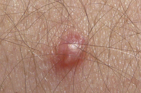... genital warts . It will not help treat or cure men or women who are