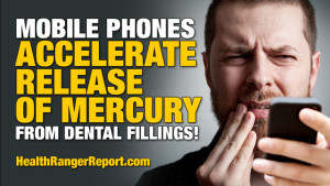 Mobile-Phones-Accelerate-Release-of-Mercury-Dental-Fillings
